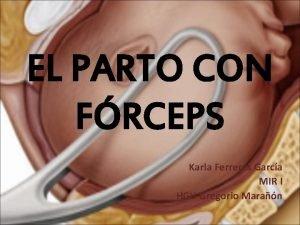 EL PARTO CON FRCEPS Karla Ferreres Garca MIR