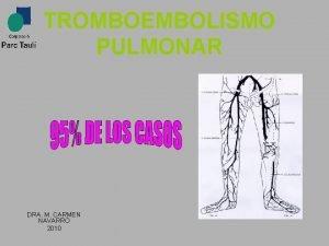 TROMBOEMBOLISMO PULMONAR DRA M CARMEN NAVARRO 2010 Tiene