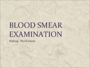 BLOOD SMEAR EXAMINATION Making Blood smear PREPARATION OF