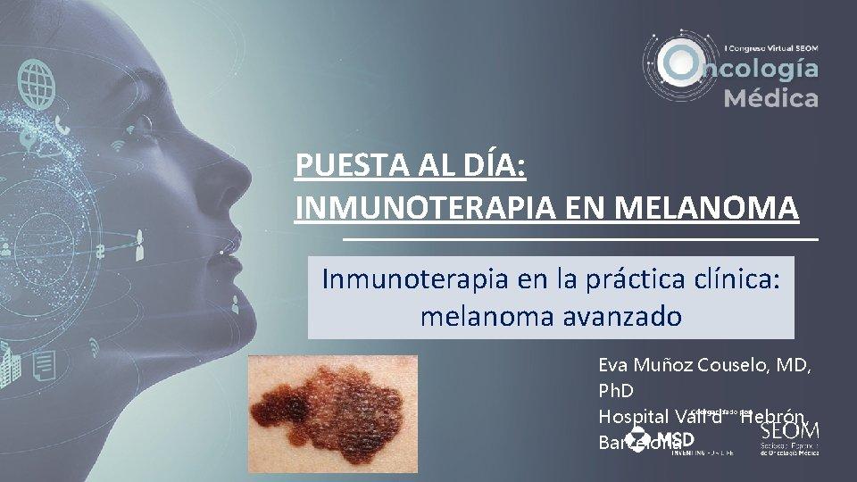 PUESTA AL DA INMUNOTERAPIA EN MELANOMA Inmunoterapia en