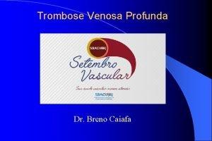Trombose Venosa Profunda Dr Breno Caiafa TROMBOSE VENOSA