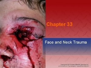 Chapter 33 Face and Neck Trauma National EMS