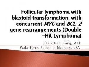 Follicular lymphoma with blastoid transformation with concurrent MYC