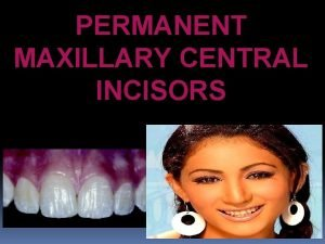 PERMANENT MAXILLARY CENTRAL INCISORS GENERAL FEATURES Permanent incisors