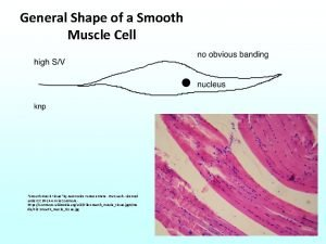General Shape of a Smooth Muscle Cell Smooth