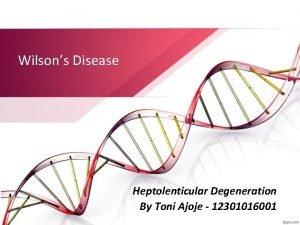 Wilsons Disease Heptolenticular Degeneration By Toni Ajoje 12301016001
