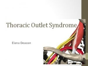 Thoracic Outlet Syndrome Elana Deacon Definition Thoracic outlet