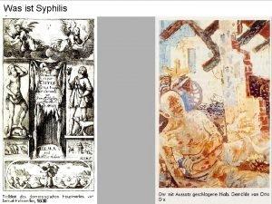 Was ist Syphilis 1630 Was ist ein Syndrom