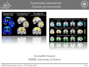 Functional connectivity Diseases of connectivity Gwenalle Douaud FMRIB