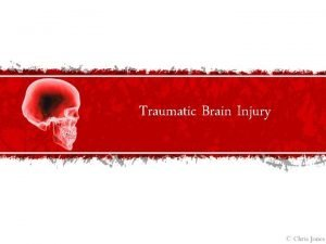 Traumatic Brain Injury Traumatic Brain Injury Defined Traumatic