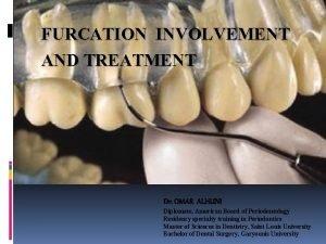 FURCATION INVOLVEMENT TREATMENT OF FURCATIONAND TREATMENT INVOLVED TEETH