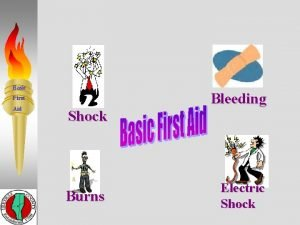 Basic Bleeding First Aid Shock Burns Electric Shock