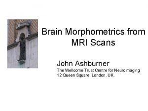 Brain Morphometrics from MRI Scans John Ashburner The