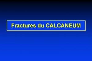 Fractures du CALCANEUM Fractures du CALCANEUM Calcaneum vue