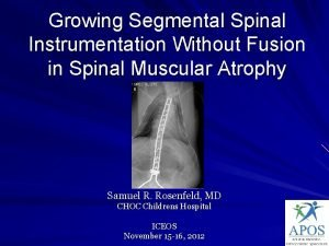 Growing Segmental Spinal Instrumentation Without Fusion in Spinal