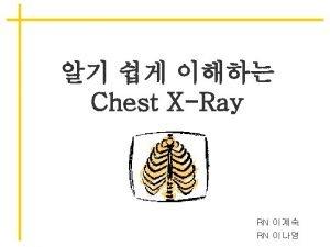 chest xray Cardiac border left lower lobe LLL