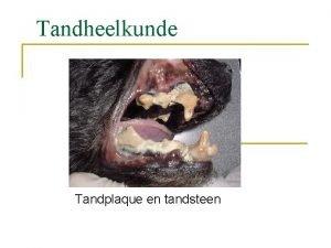 Tandheelkunde Tandplaque en tandsteen Parodontologie n Parodontologie is