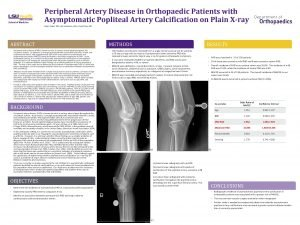 Peripheral Artery Disease in Orthopaedic Patients with Asymptomatic