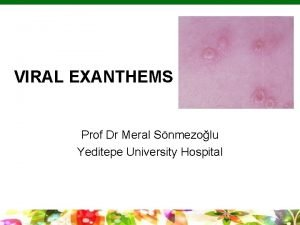 VIRAL EXANTHEMS Prof Dr Meral Snmezolu Yeditepe University
