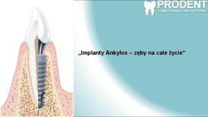 Implanty Ankylos zby na cae ycie Drogi Pacjencie