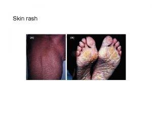 Skin rash Laboratory Data TEST HEMATOLOGY REFERENCE RANGE