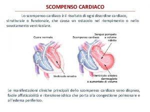 SCOMPENSO CARDIACO Lo scompenso cardiaco il risultato di