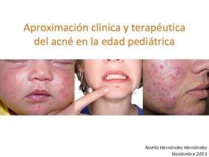Aproximacin clnica y teraputica del acn en la