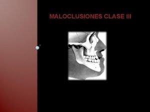 MALOCLUSIONES CLASE III CLASE III Segn la clasificacin
