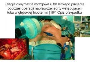 Ciga oksymetria mzgowa u 80 letniego pacjenta podczas