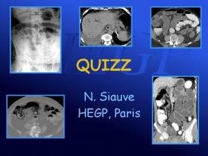 QUIZZ N Siauve HEGP Paris Cas clinique n