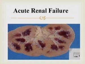 Acute Renal Failure What is Acute Renal Failure