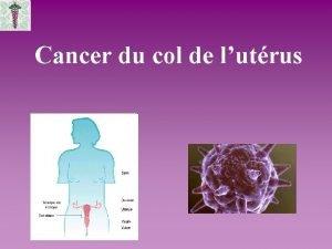 Cancer du col de lutrus Dfinitions CANCER pathologie