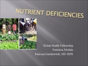 NUTRIENT DEF ICIENCIES Global Health Fellowship Nutrition Module