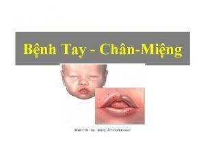 Bnh Tay ChnMing Bnh Tay chn ming c
