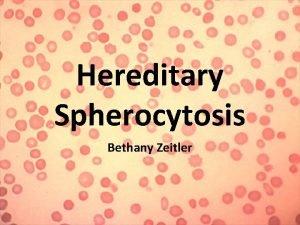 Hereditary Spherocytosis Bethany Zeitler What Is Hereditary Spherocytosis