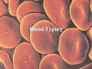 Blood Typing Blood type is based on the
