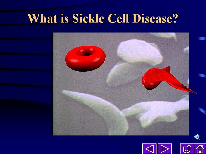 What is Sickle Cell Disease What is Sickle