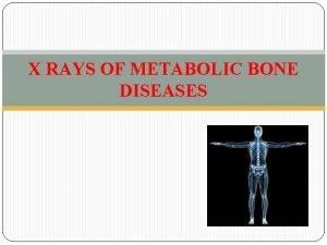 X RAYS OF METABOLIC BONE DISEASES CONTENTS XRAY