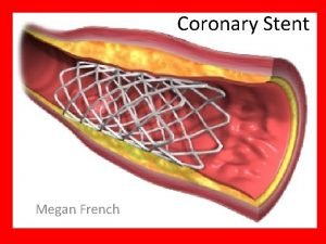 Coronary Stent Megan French What is a Stent