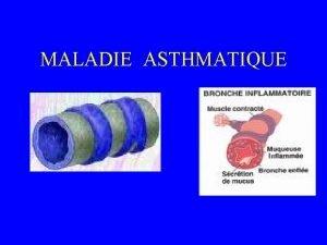 MALADIE ASTHMATIQUE MALADIE ASTHMATIQUE DEFINITIONS DEFINITION CLINIQUE une