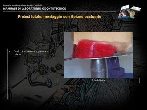 Protesi totale montaggio con il piano occlusale Vallo