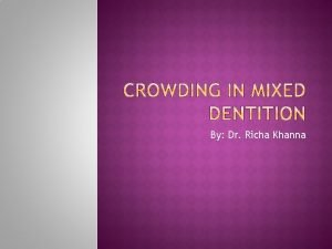 By Dr Richa Khanna Crowding in mixed dentition