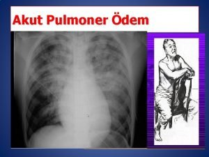 Akut Pulmoner dem Akut kalp yetersizlii Tehisten tedaviye