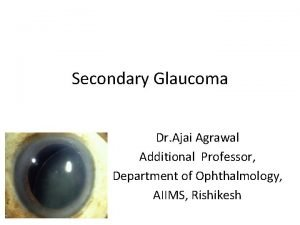 Secondary Glaucoma Dr Ajai Agrawal Additional Professor Department