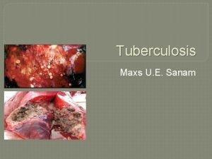 Tuberculosis Maxs U E Sanam Tuberculosis TB adalah