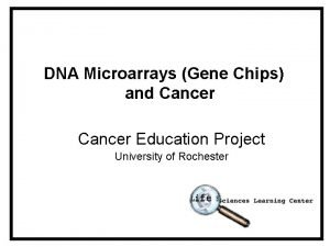 DNA Microarrays Gene Chips and Cancer Education Project