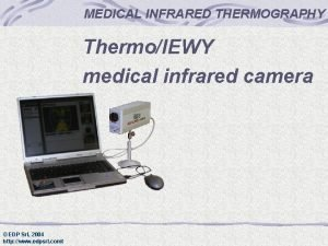 MEDICAL INFRARED THERMOGRAPHY ThermoIEWY medical infrared camera EDP