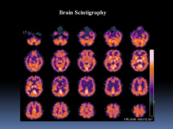 Brain Scintigraphy Brain Scintigraphy Brain Scintigraphy Brain Scintigraphy