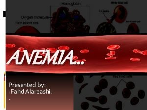 ANEMIA Presented by Fahd Alareashi What is Anemia