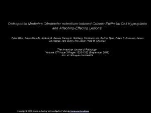 Osteopontin Mediates Citrobacter rodentiumInduced Colonic Epithelial Cell Hyperplasia